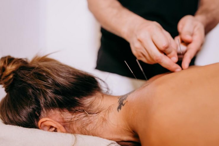 effets acupuncture